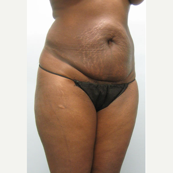 47 year old woman treated with Tummy Tuck before 3680126