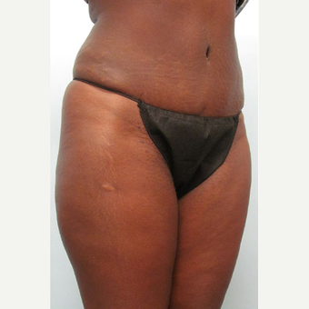 47 year old woman treated with Tummy Tuck after 3680126
