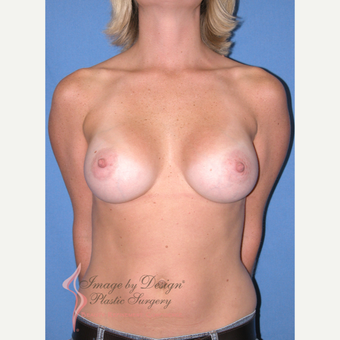 25-34 year old woman treated with Breast Implants after 3090816