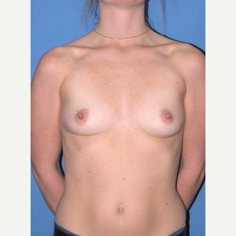 25-34 year old woman treated with Breast Implants before 3090816