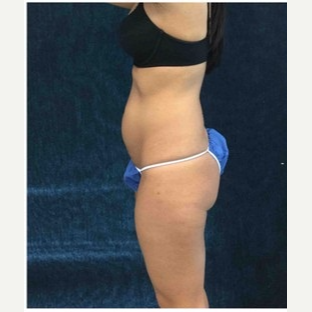 25-34 year old woman treated with CoolSculpting before 3181821