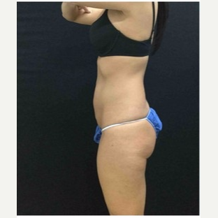 25-34 year old woman treated with CoolSculpting after 3181821