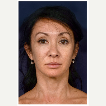 45-54 year old woman treated with Microneedling