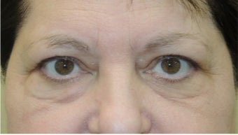 45-54 year old woman treated with Eye Bags Treatment before 3524482