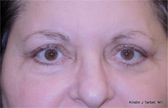 45-54 year old woman treated with Eye Bags Treatment after 3524482