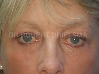 52yo woman, prominent eye bags (tear troughs) after 1513534