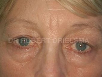 52yo woman, prominent eye bags (tear troughs) before 1513534