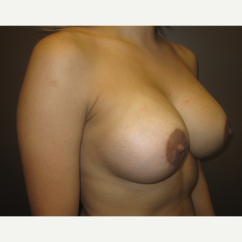 35-44 year old woman treated with Breast Implants after 3418104