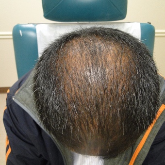 25-34 year old man treated with PRP for Hair Loss before 2732224
