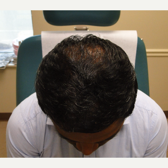 25-34 year old man treated with PRP for Hair Loss after 2732224