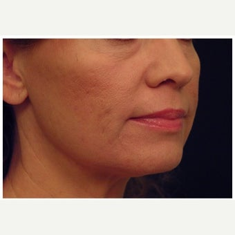 45-54 year old woman treated with Non Surgical Face Lift after 1559375
