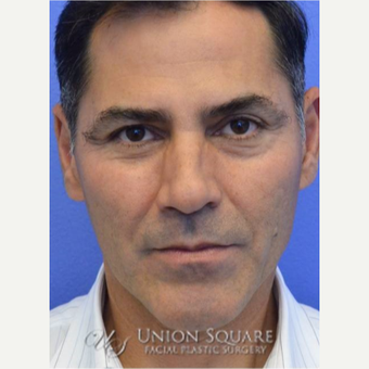 45-54 year old man treated with Sculptra for Liquid Face Lift