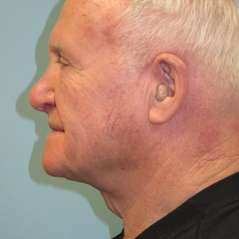 65-74 year old man treated with Neck Lift after 3730578