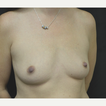 35-44 year old woman treated with Breast Implants before 3181845