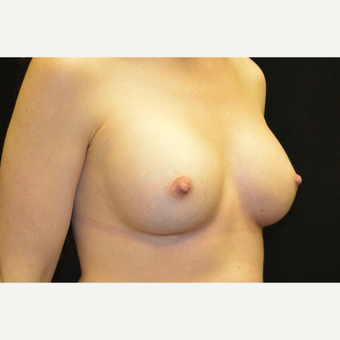 35-44 year old woman treated with Breast Implants after 3181845