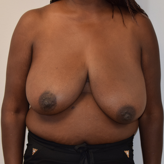 45-54 year old woman treated with Breast Reduction before 3316930