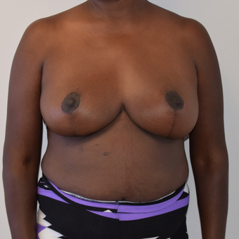 45-54 year old woman treated with Breast Reduction after 3316930