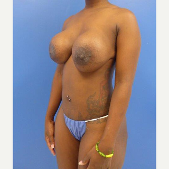 36 y/o female - Wise pattern mastopexy with breast implant exchange. Moderate profile 360cc.