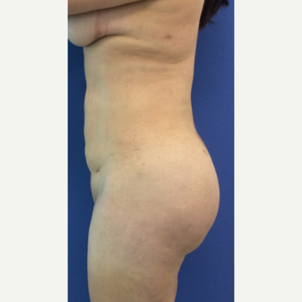 35-44 year old woman treated with Brazilian Butt Lift after 2760024