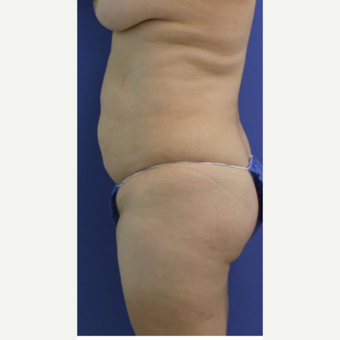 35-44 year old woman treated with Brazilian Butt Lift before 2760024