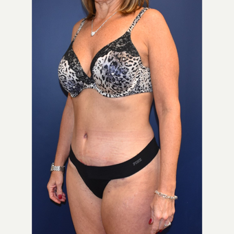 45-54 year old woman treated with Liposuction after 3744527