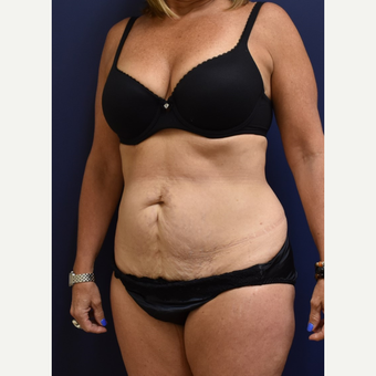 45-54 year old woman treated with Liposuction before 3744527