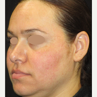25-34 year old woman treated with Skin Lightening after 3089494