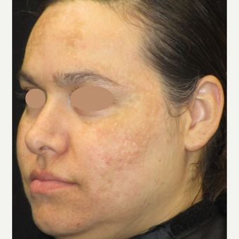 25-34 year old woman treated with Skin Lightening before 3089494