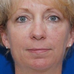 Woman treated with Restylane after 1686465
