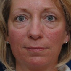Woman treated with Restylane before 1686465