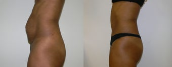 Tummy tuck to repair muscle diastasis after pregnancy before 1399697