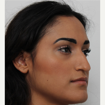 25-34 year old woman treated with Rhinoplasty before 3372293