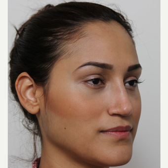 25-34 year old woman treated with Rhinoplasty after 3372293