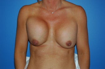 capsular contracture before 1057449