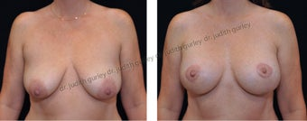 Breast Lift with Implants before 1392153