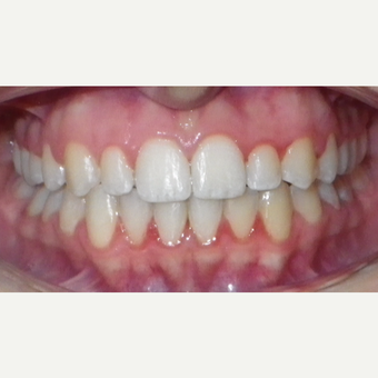 17 or under year old woman treated with Invisalign after 3501706