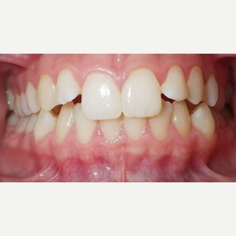 17 or under year old woman treated with Invisalign before 3501706