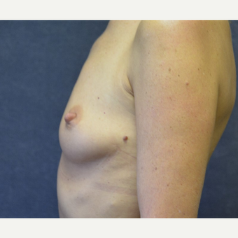 45-54 year old woman treated with Breast Implants before 3455416