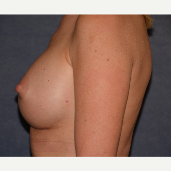 45-54 year old woman treated with Breast Implants after 3455416