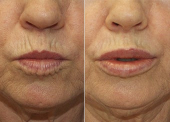 57 Year Old Female Treated for thin lips before 1229599