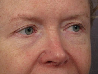 Eyelid Surgery before 280835