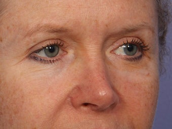 Eyelid Surgery after 280835