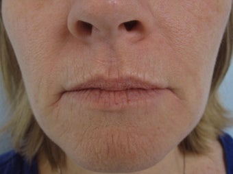 Dermabrasion in 46 year old woman before 1000823