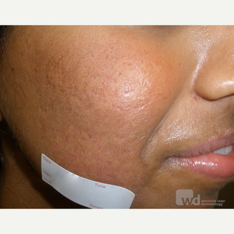 Acne treatments in ethnic skin types- reduces acne scarring after 3696987
