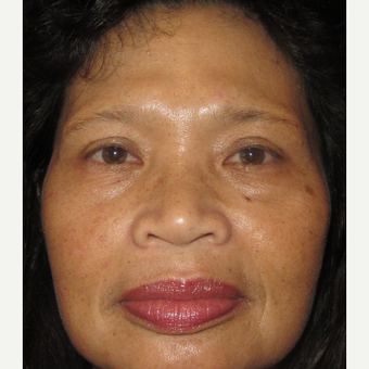 55-64 year old woman treated with Rhinoplasty before 3333258