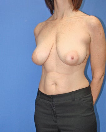 45-54 year old woman treated with Breast Reduction 2447845