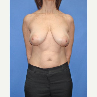 45-54 year old woman treated with Breast Reduction before 2447845