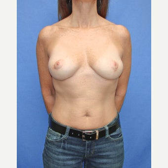 45-54 year old woman treated with Breast Reduction after 2447845