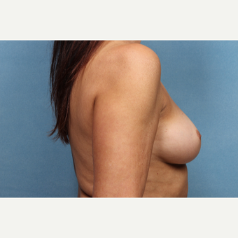 55-64 year old woman treated with Breast Augmentation before 3265304