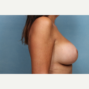55-64 year old woman treated with Breast Augmentation after 3265304